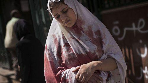 mujer siria herida manu brbao