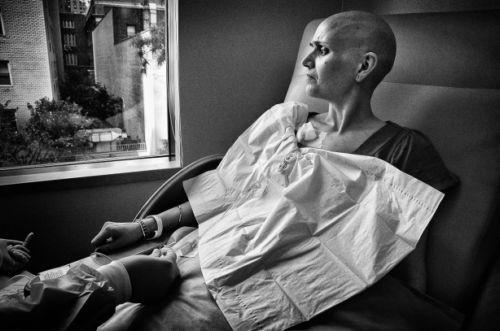 recibiendo tratamiento de quimioterapia en el hospital